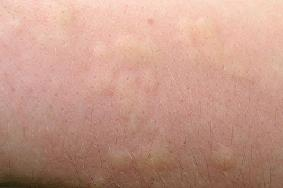 Rash caused by stinging nettles